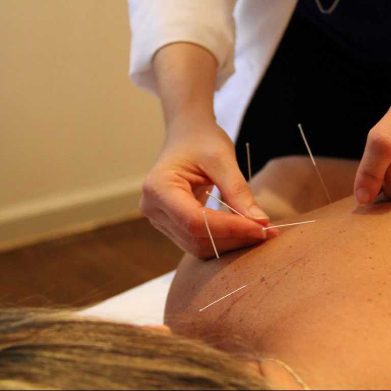 Woman having acupuncture needles placed into pressure points on her back.
